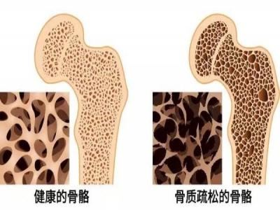 骨密度仪厂家教您看懂骨密度T值与Z值